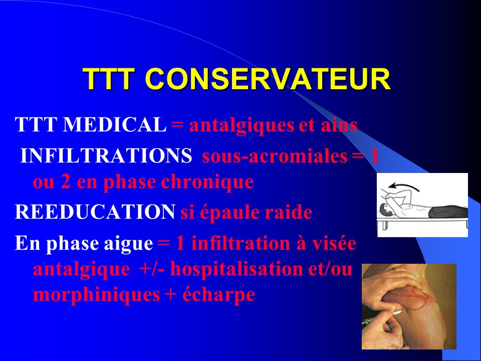 TTT CONSERVATEUR TTT MEDICAL = antalgiques et ains