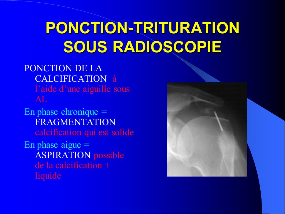 PONCTION-TRITURATION SOUS RADIOSCOPIE