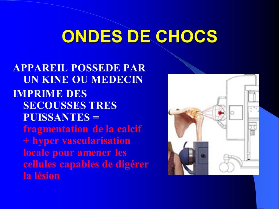 ONDES DE CHOCS APPAREIL POSSEDE PAR UN KINE OU MEDECIN
