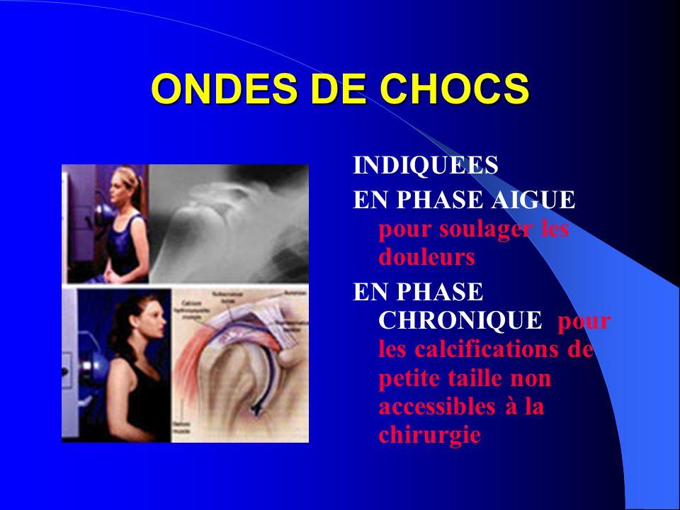 ONDES DE CHOCS INDIQUEES EN PHASE AIGUE pour soulager les douleurs