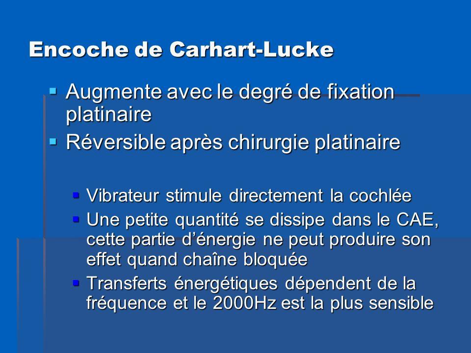 Encoche de Carhart-Lucke