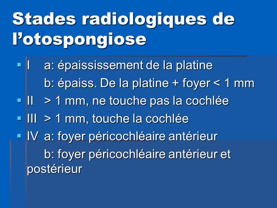 Stades radiologiques de l'otospongiose