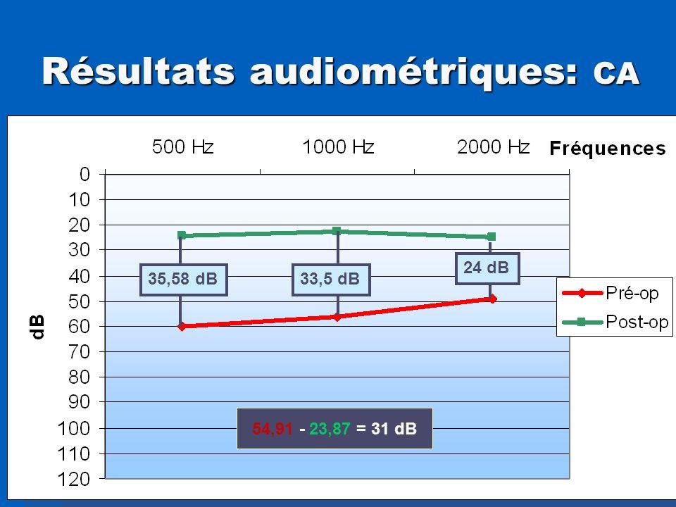 Résultats audiométriques: CA