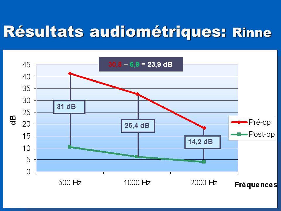 Résultats audiométriques: Rinne