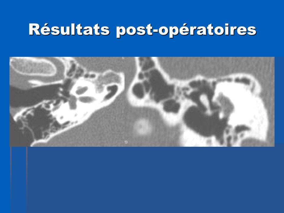 Résultats post-opératoires