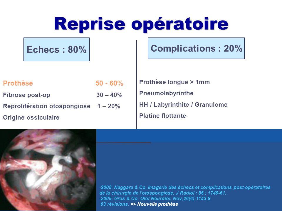 Reprise opératoire Echecs : 80% Complications : 20% Prothèse 50 - 60%