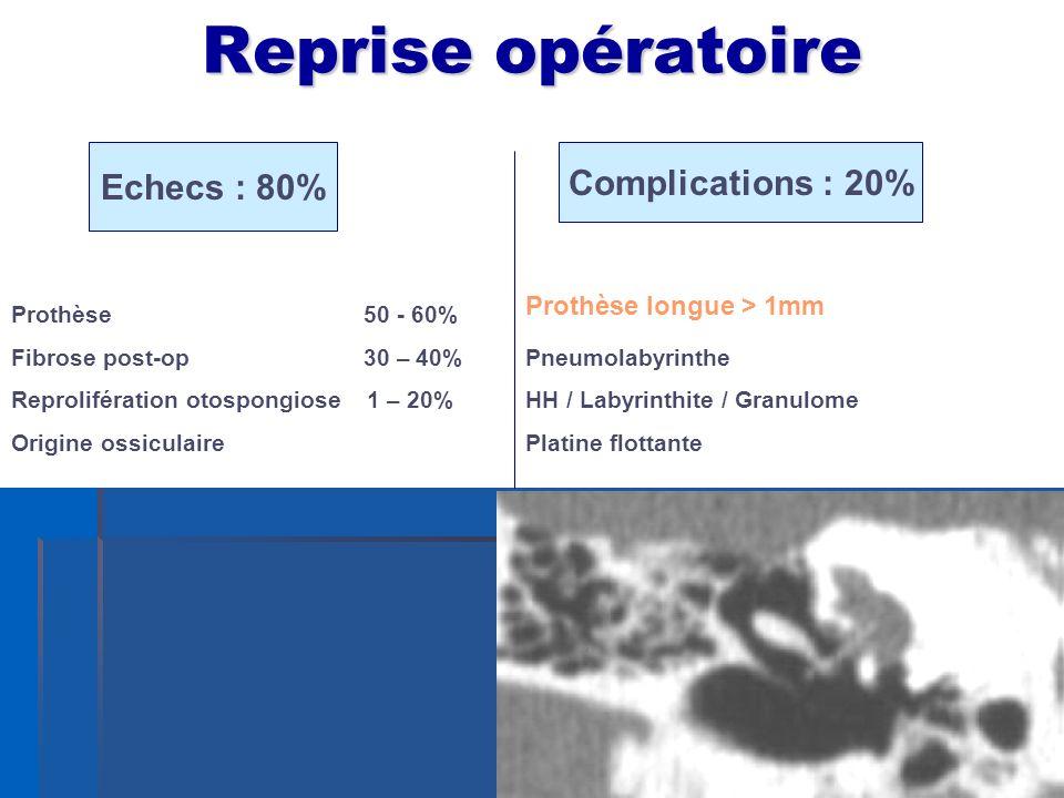 Reprise opératoire Echecs : 80% Complications : 20%