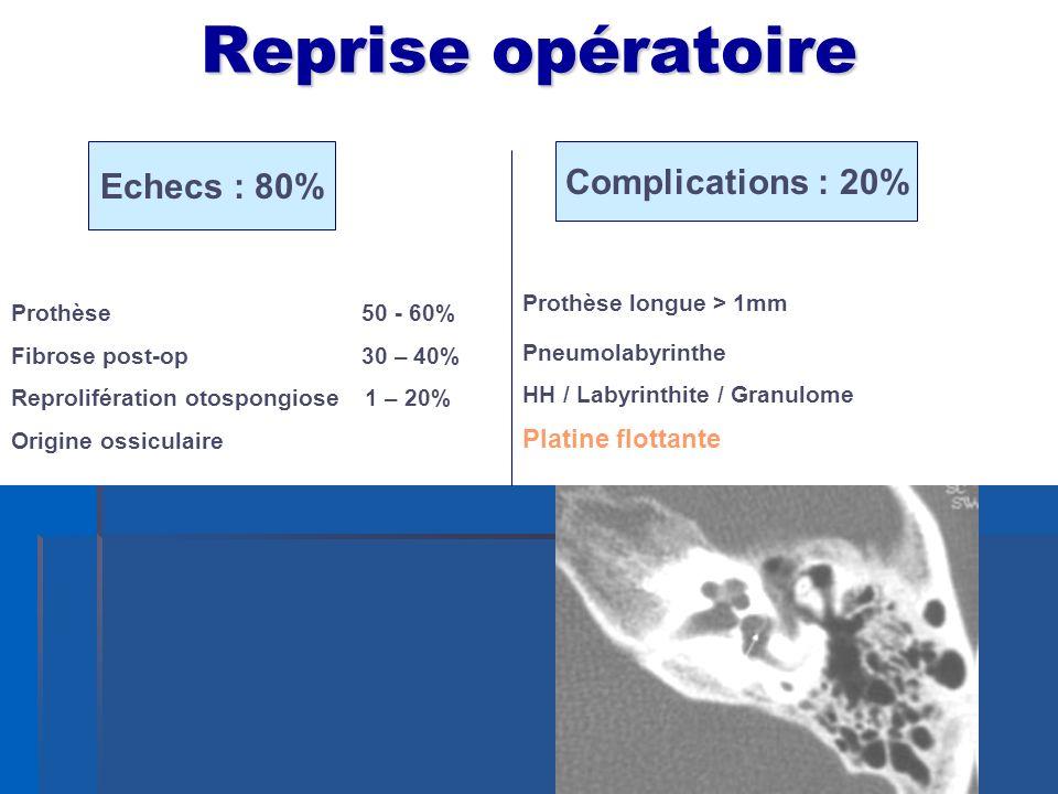 Reprise opératoire Echecs : 80% Complications : 20% Platine flottante