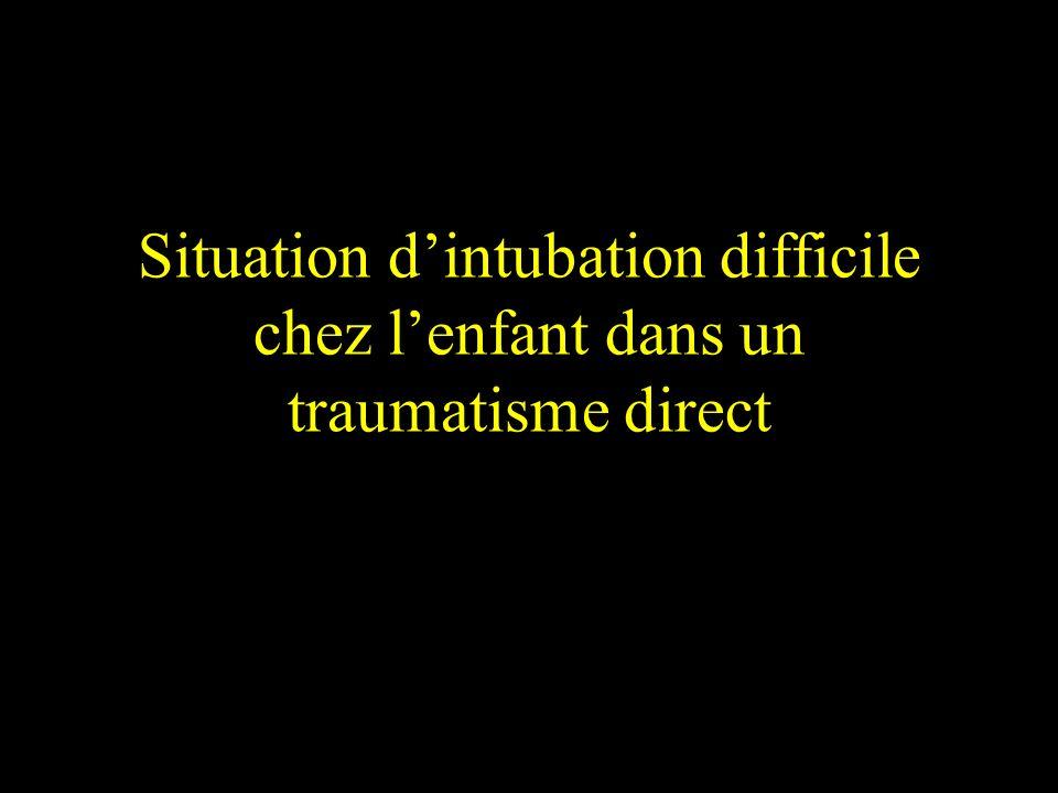 Situation d'intubation difficile chez l'enfant dans un traumatisme direct