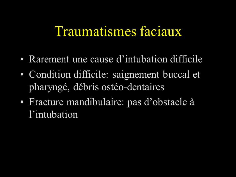 Traumatismes faciaux Rarement une cause d'intubation difficile