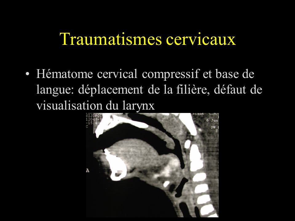 Traumatismes cervicaux