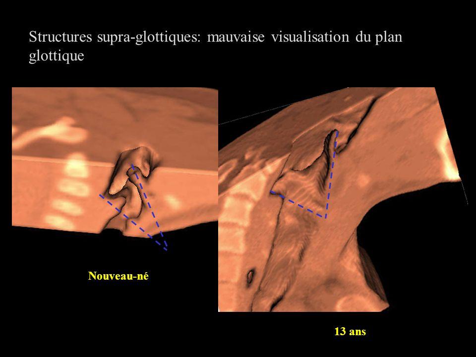 Structures supra-glottiques: mauvaise visualisation du plan glottique