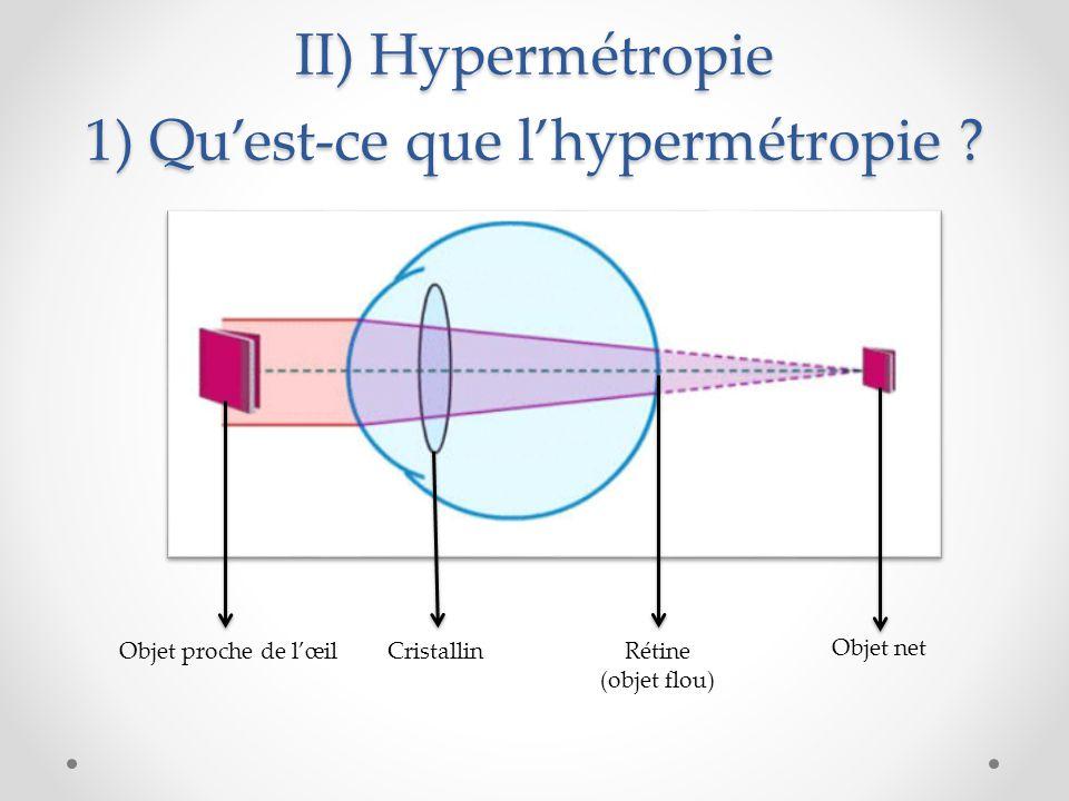 II) Hypermétropie 1) Qu'est-ce que l'hypermétropie