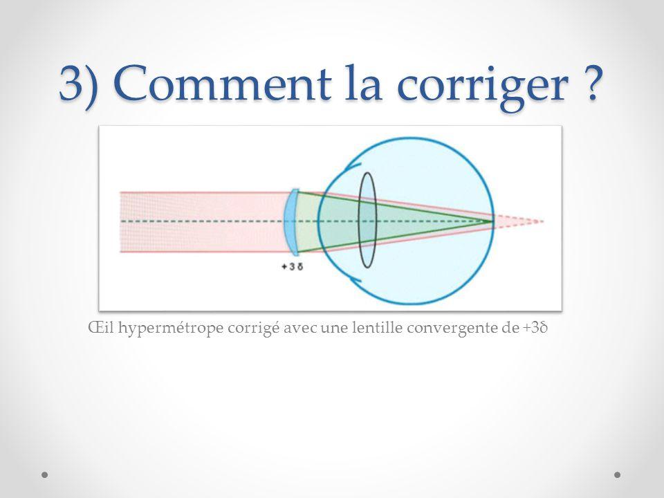 3) Comment la corriger Œil hypermétrope corrigé avec une lentille convergente de +3δ