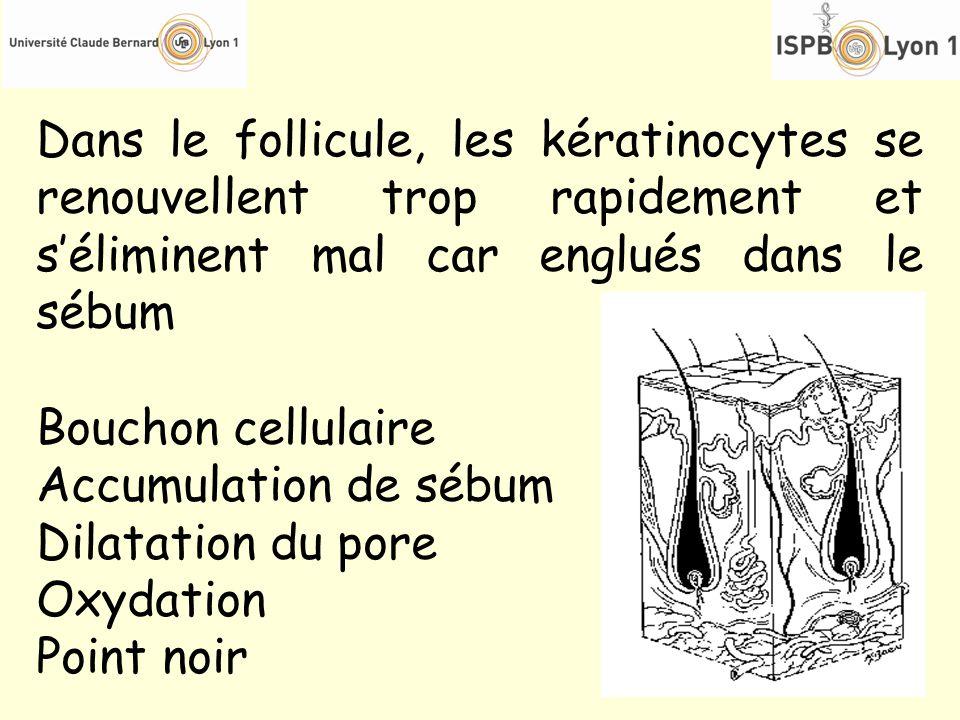 Dans le follicule, les kératinocytes se renouvellent trop rapidement et s'éliminent mal car englués dans le sébum