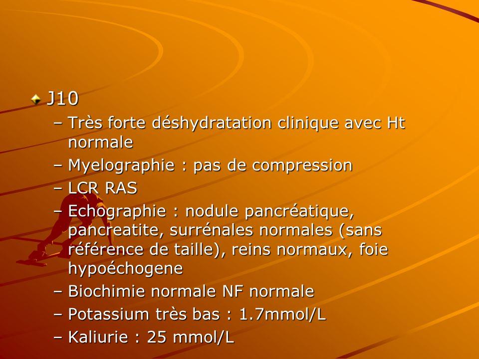J10 Très forte déshydratation clinique avec Ht normale