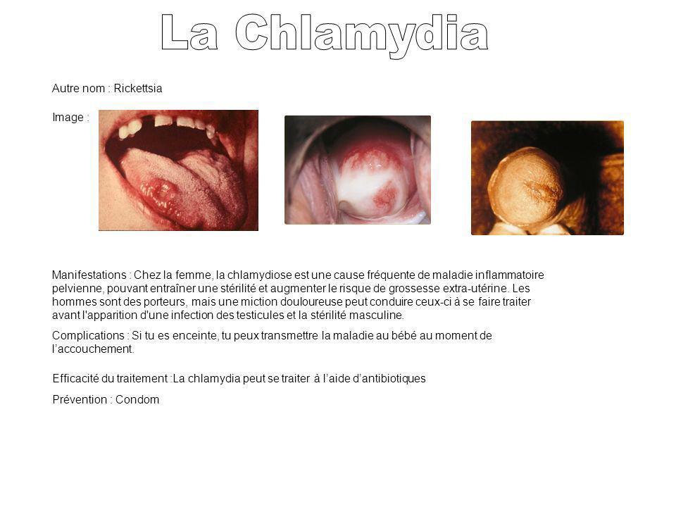 La Chlamydia Autre nom : Rickettsia Image :