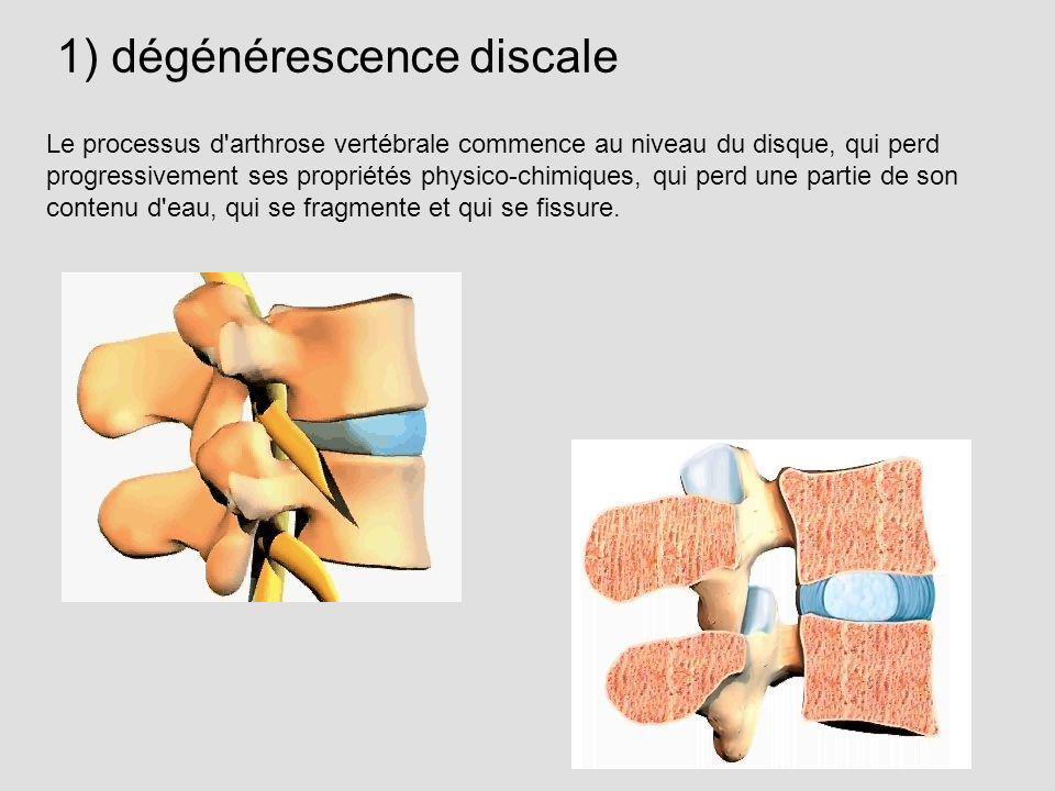 1) dégénérescence discale