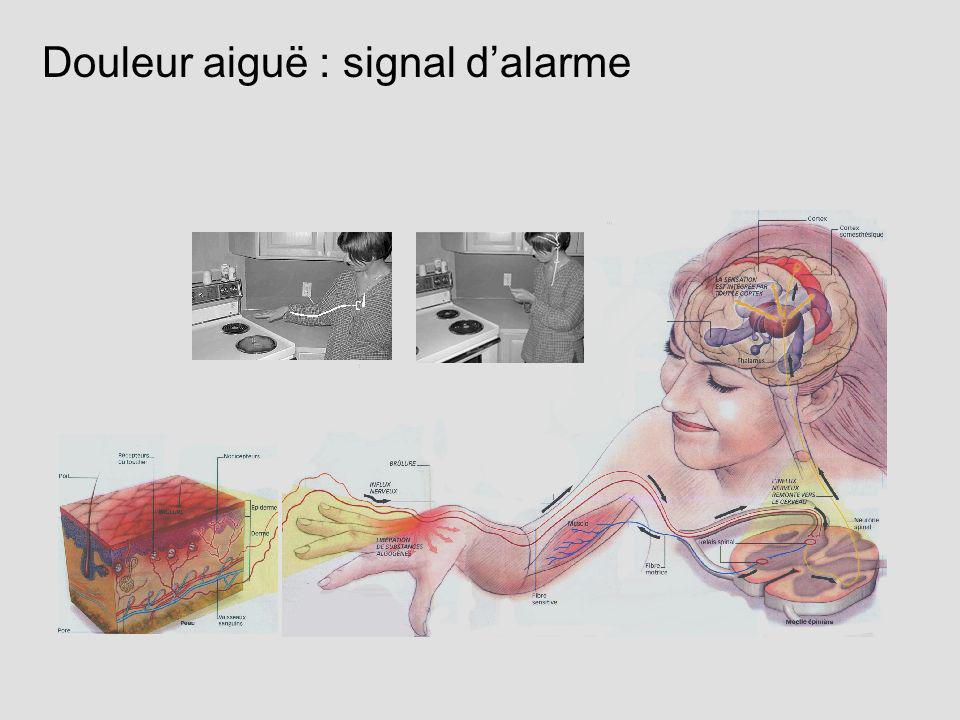 Douleur aiguë : signal d'alarme