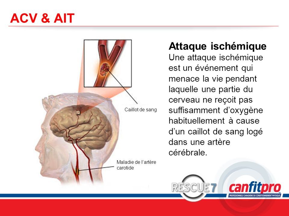ACV & AIT Attaque ischémique