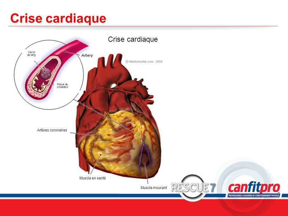 Crise cardiaque Crise cardiaque KEY POINTS: