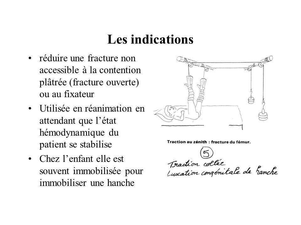 Les indications réduire une fracture non accessible à la contention plâtrée (fracture ouverte) ou au fixateur.