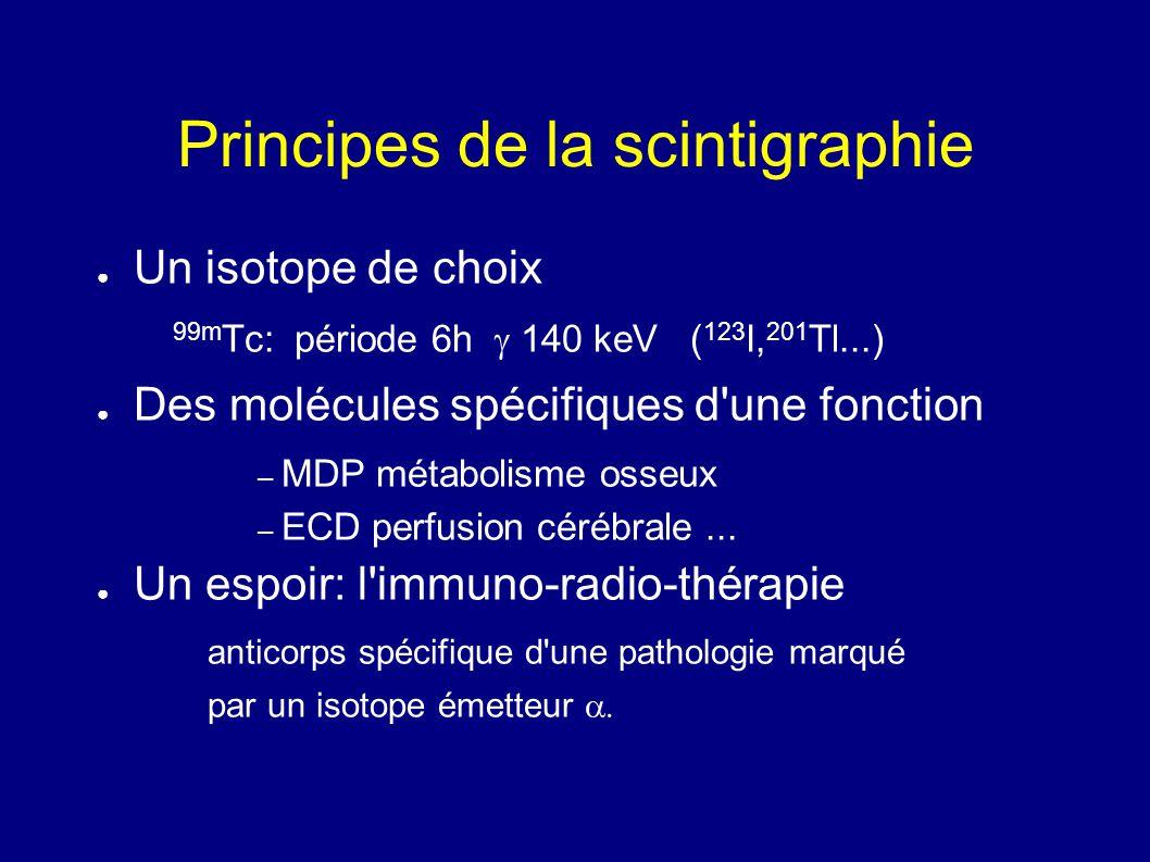 Principes de la scintigraphie