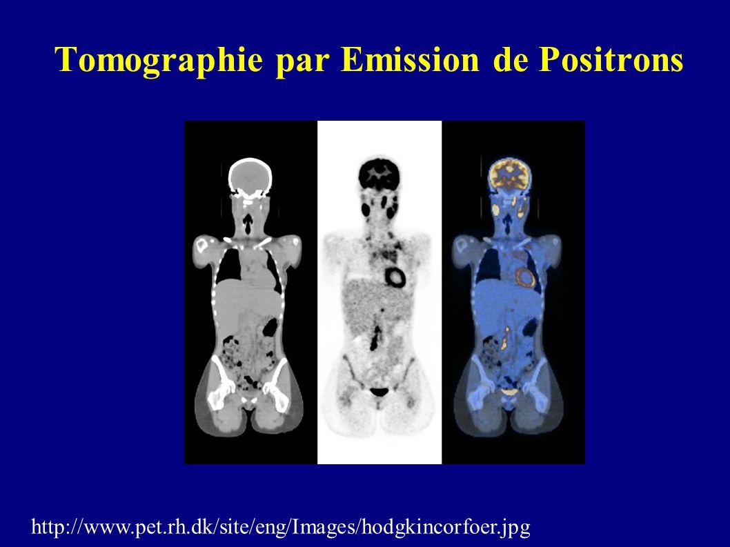 Tomographie par Emission de Positrons