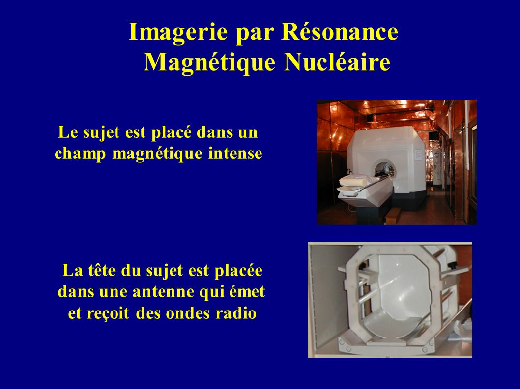 Imagerie par Résonance Magnétique Nucléaire