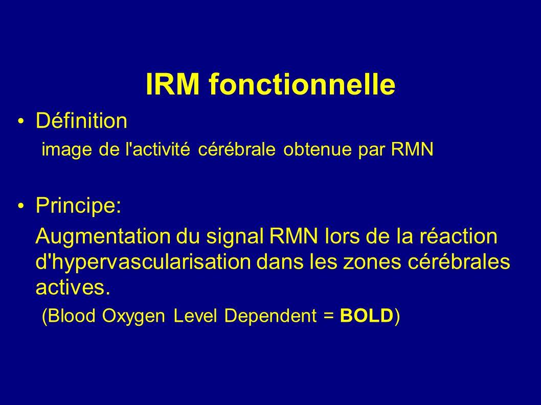 IRM fonctionnelle Définition Principe:
