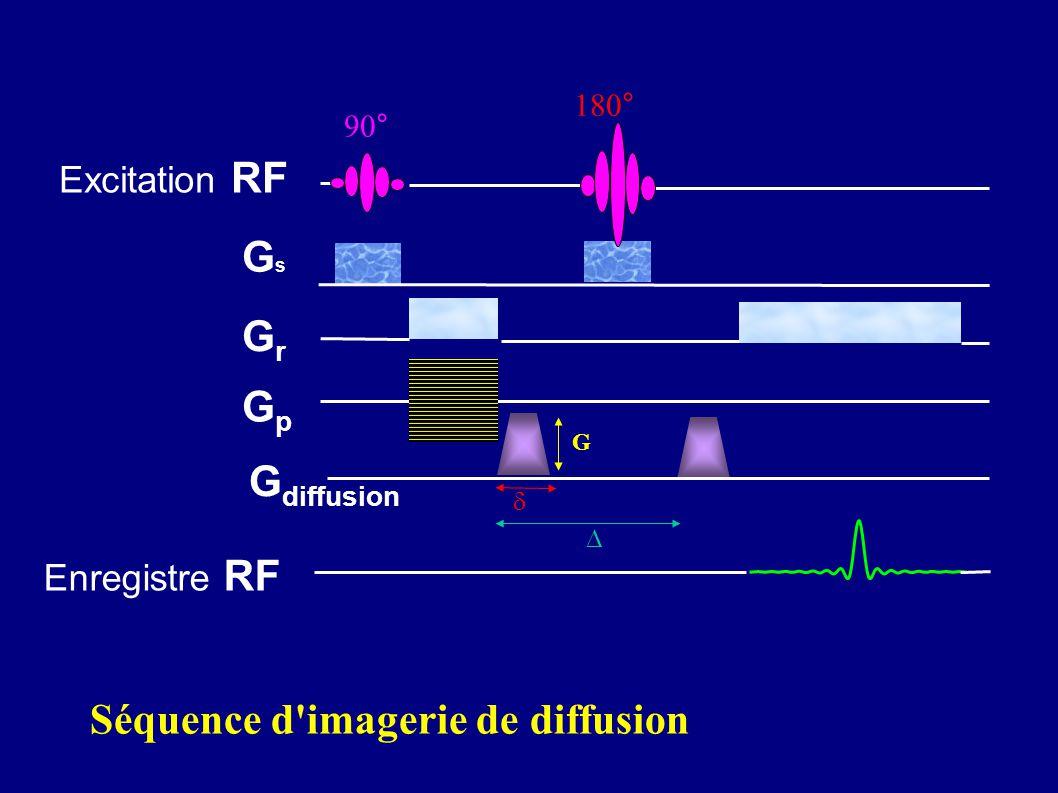 Séquence d imagerie de diffusion