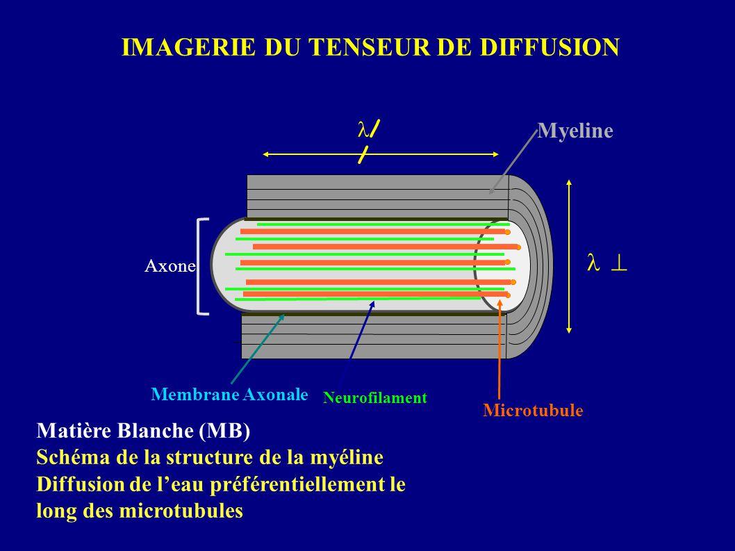 IMAGERIE DU TENSEUR DE DIFFUSION