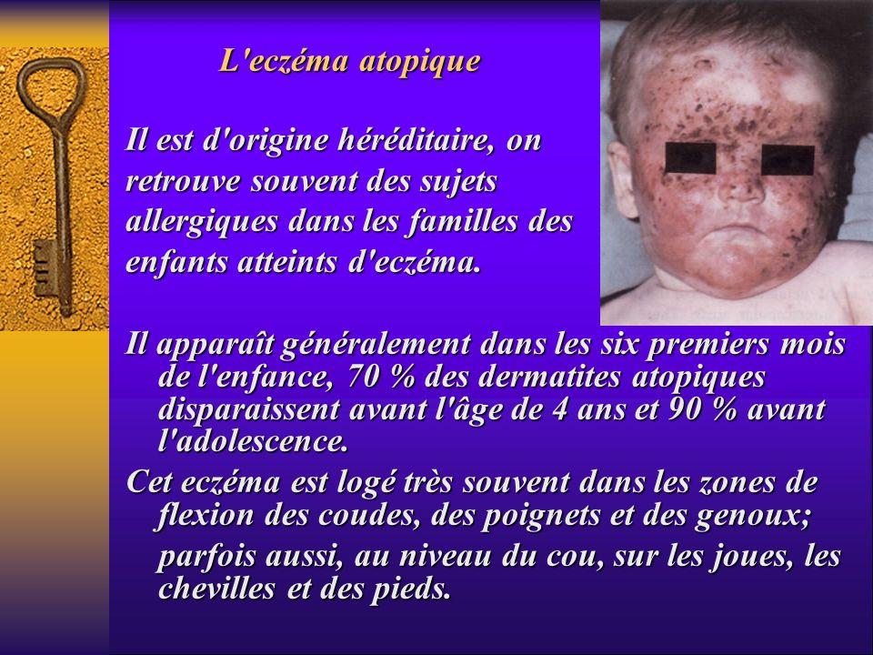 L eczéma atopiqueIl est d origine héréditaire, on. retrouve souvent des sujets. allergiques dans les familles des.