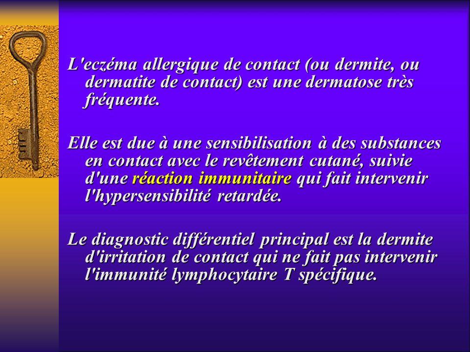 L eczéma allergique de contact (ou dermite, ou dermatite de contact) est une dermatose très fréquente.