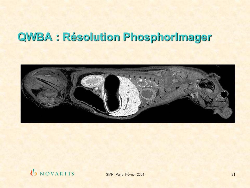 QWBA : Résolution PhosphorImager
