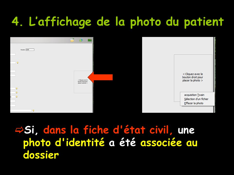 4. L'affichage de la photo du patient