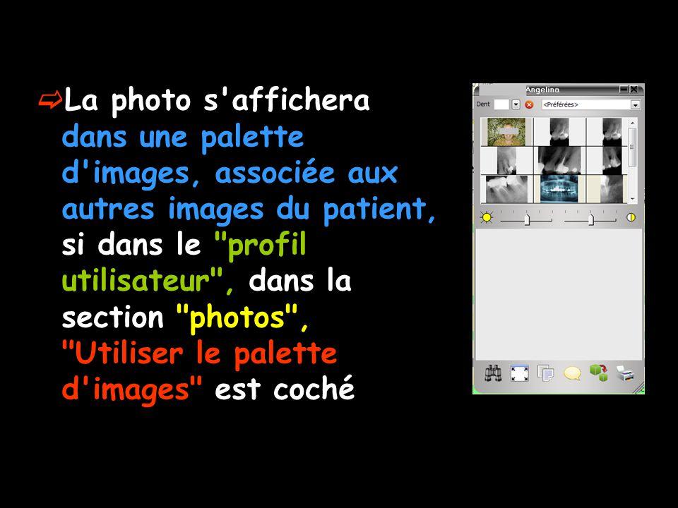 La photo s affichera dans une palette d images, associée aux autres images du patient, si dans le profil utilisateur , dans la section photos , Utiliser le palette d images est coché