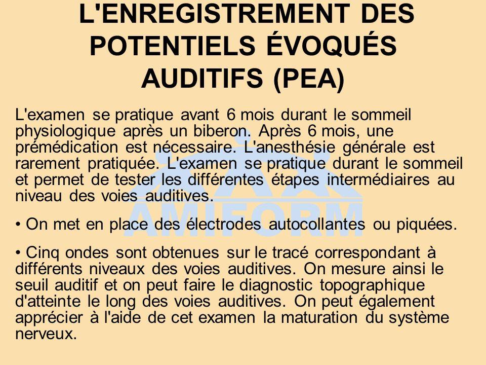- L ENREGISTREMENT DES POTENTIELS ÉVOQUÉS AUDITIFS (PEA)