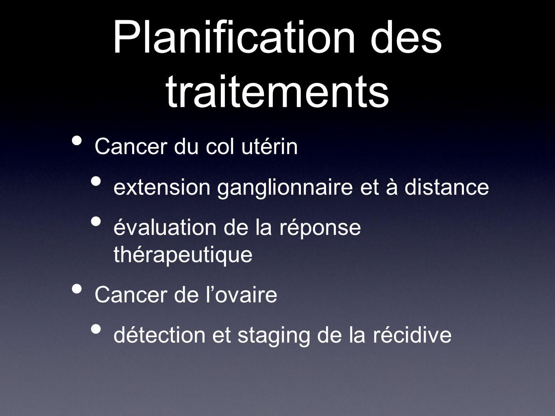 Planification des traitements
