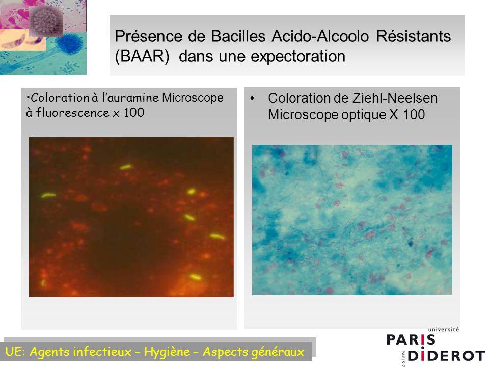 Présence de Bacilles Acido-Alcoolo Résistants (BAAR) dans une expectoration