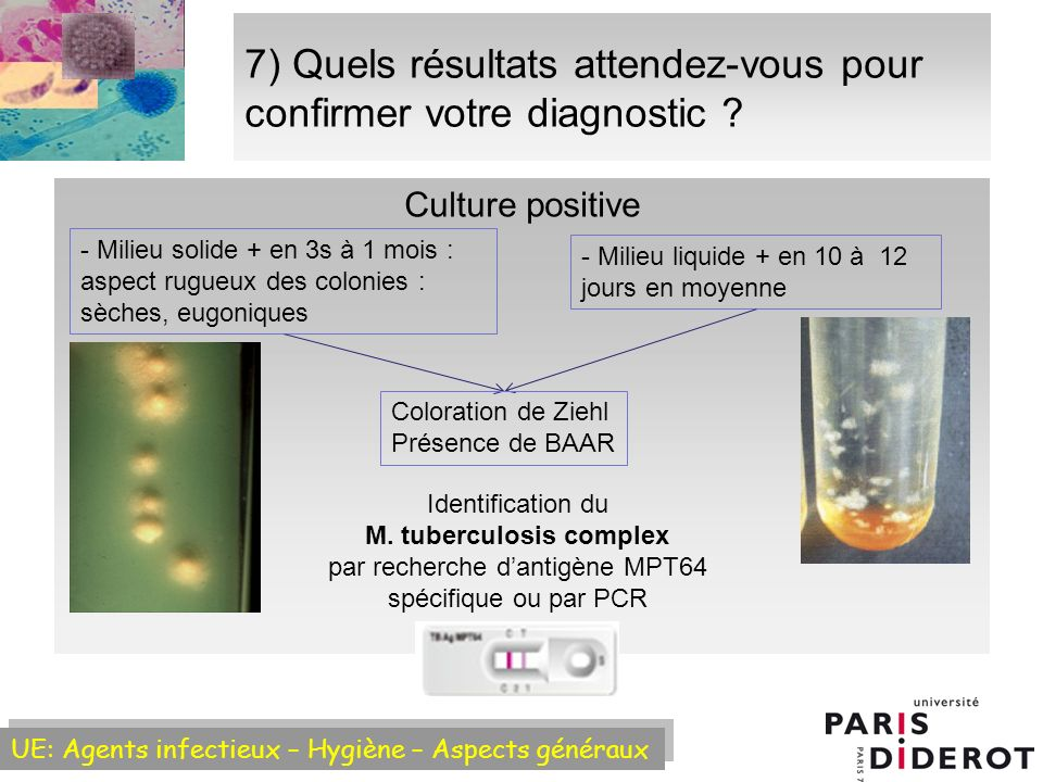 7) Quels résultats attendez-vous pour confirmer votre diagnostic