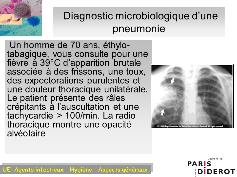 Diagnostic microbiologique d'une pneumonie