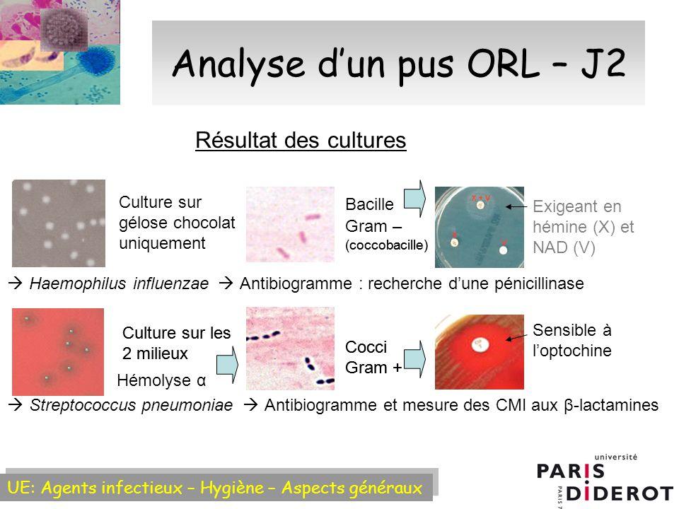 Analyse d'un pus ORL – J2 Résultat des cultures