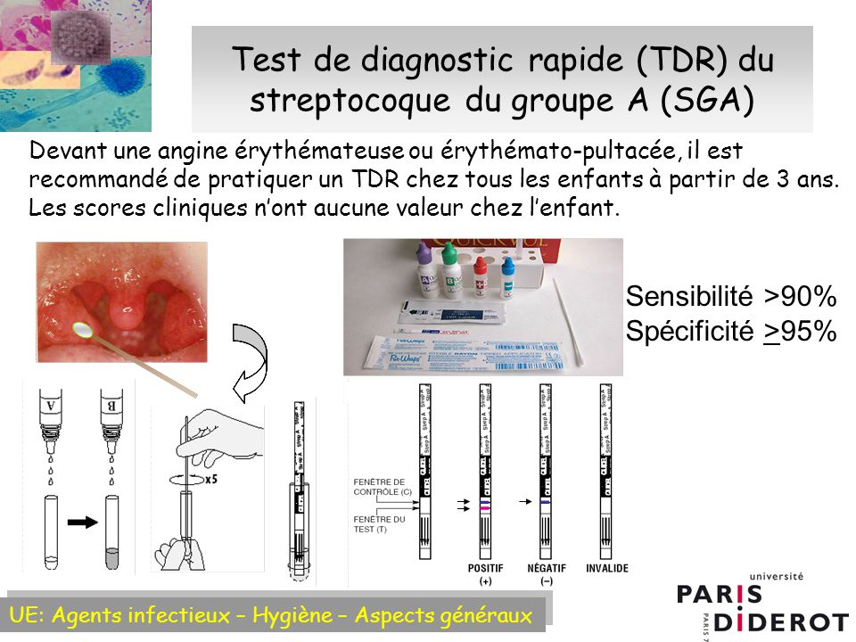Test de diagnostic rapide (TDR) du streptocoque du groupe A (SGA)