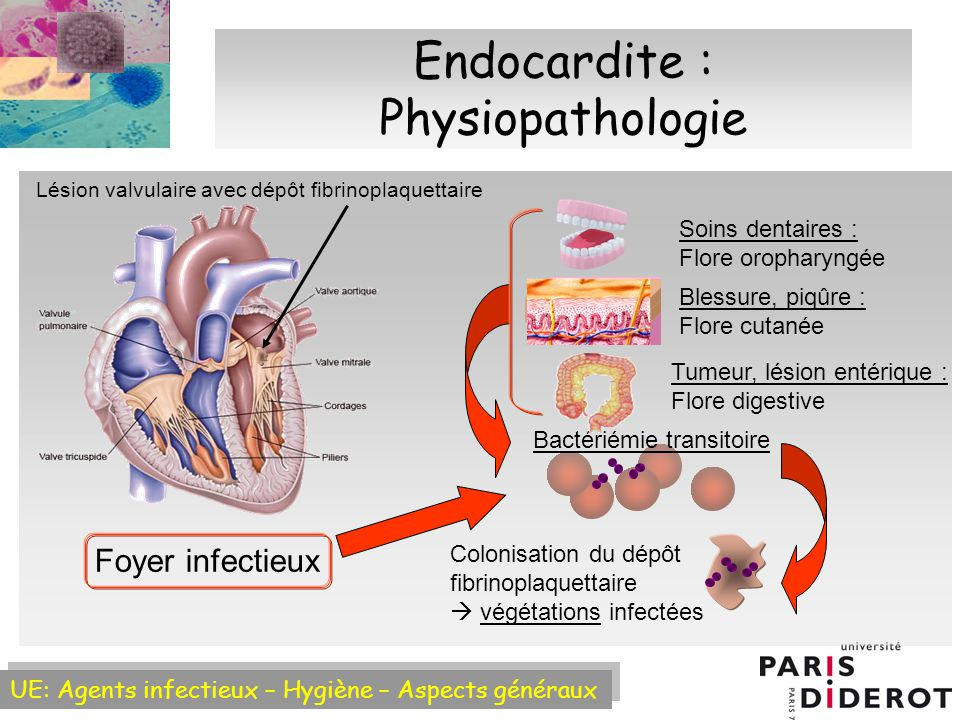 Endocardite : Physiopathologie