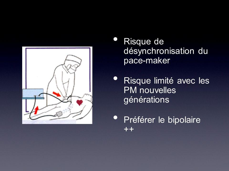 Risque de désynchronisation du pace-maker