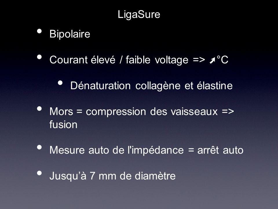 LigaSure Bipolaire. Courant élevé / faible voltage => ➚°C. Dénaturation collagène et élastine. Mors = compression des vaisseaux => fusion.