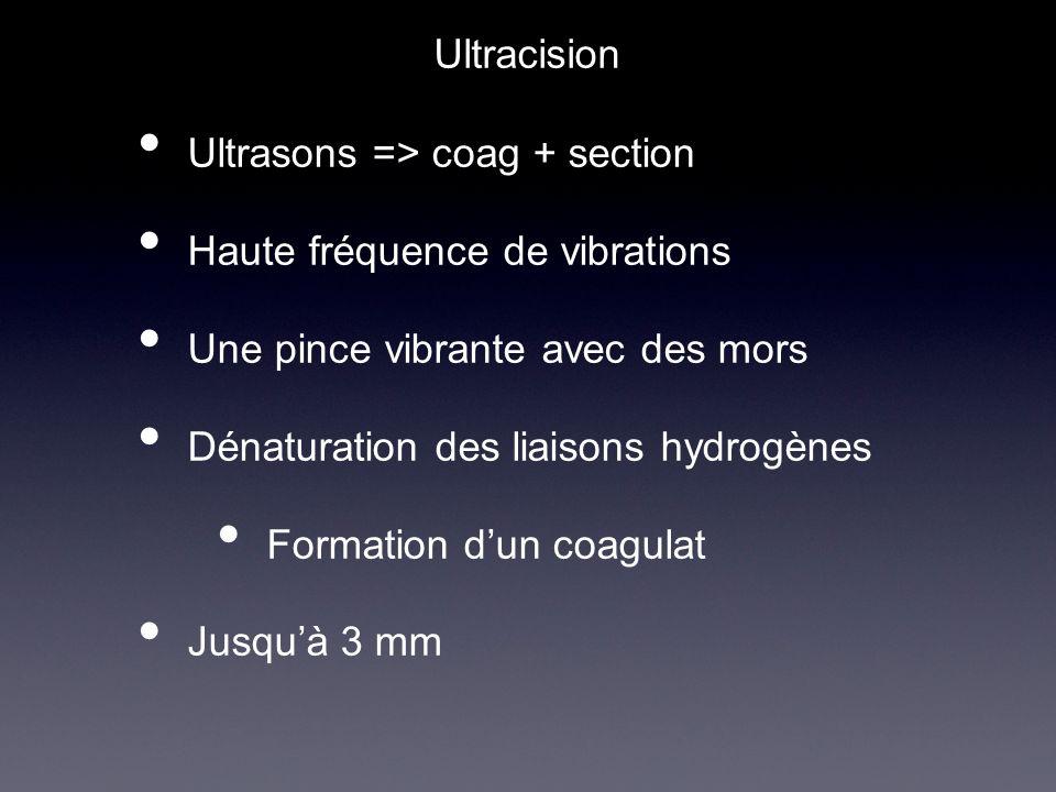 Ultrasons => coag + section Haute fréquence de vibrations