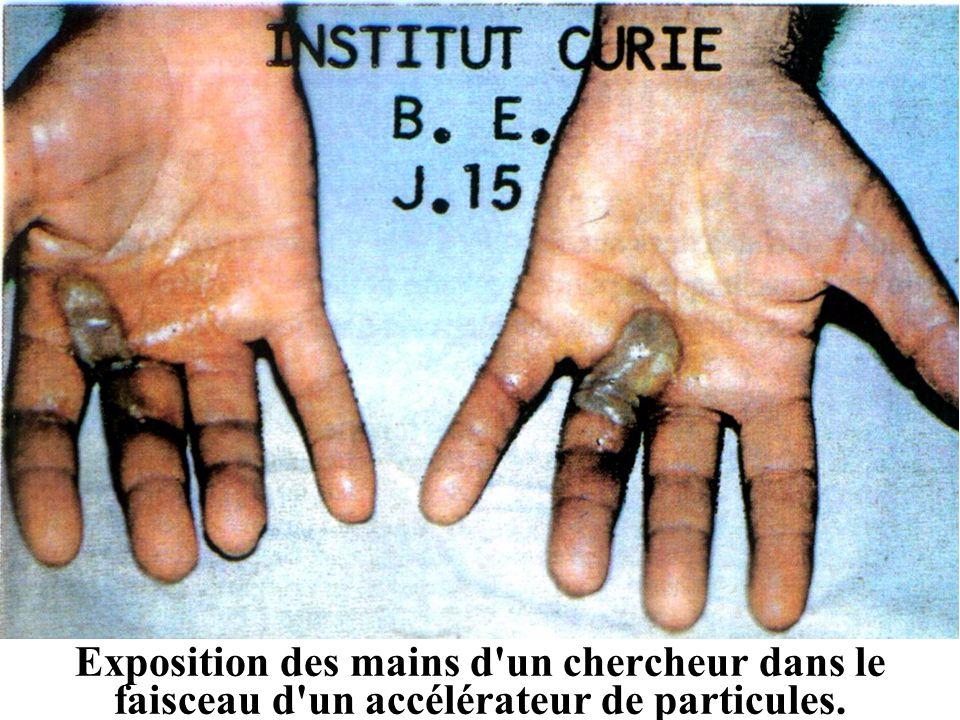 Exposition des mains d un chercheur dans le faisceau d un accélérateur de particules.