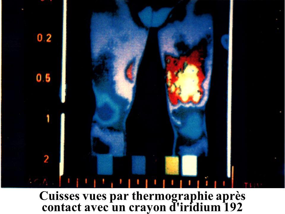 Cuisses vues par thermographie après contact avec un crayon d iridium 192